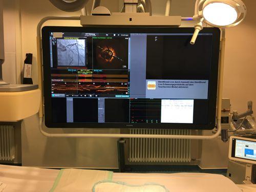 Angebot invasiver kardiologischer Untersuchungen und Behandlungen im Katheterlabor
